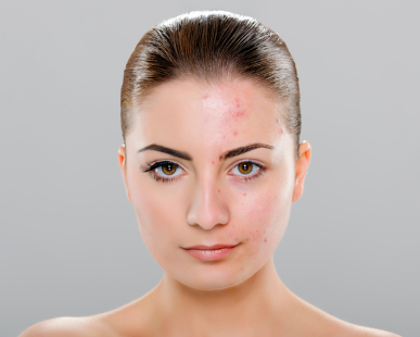How to get rid of acne before and after